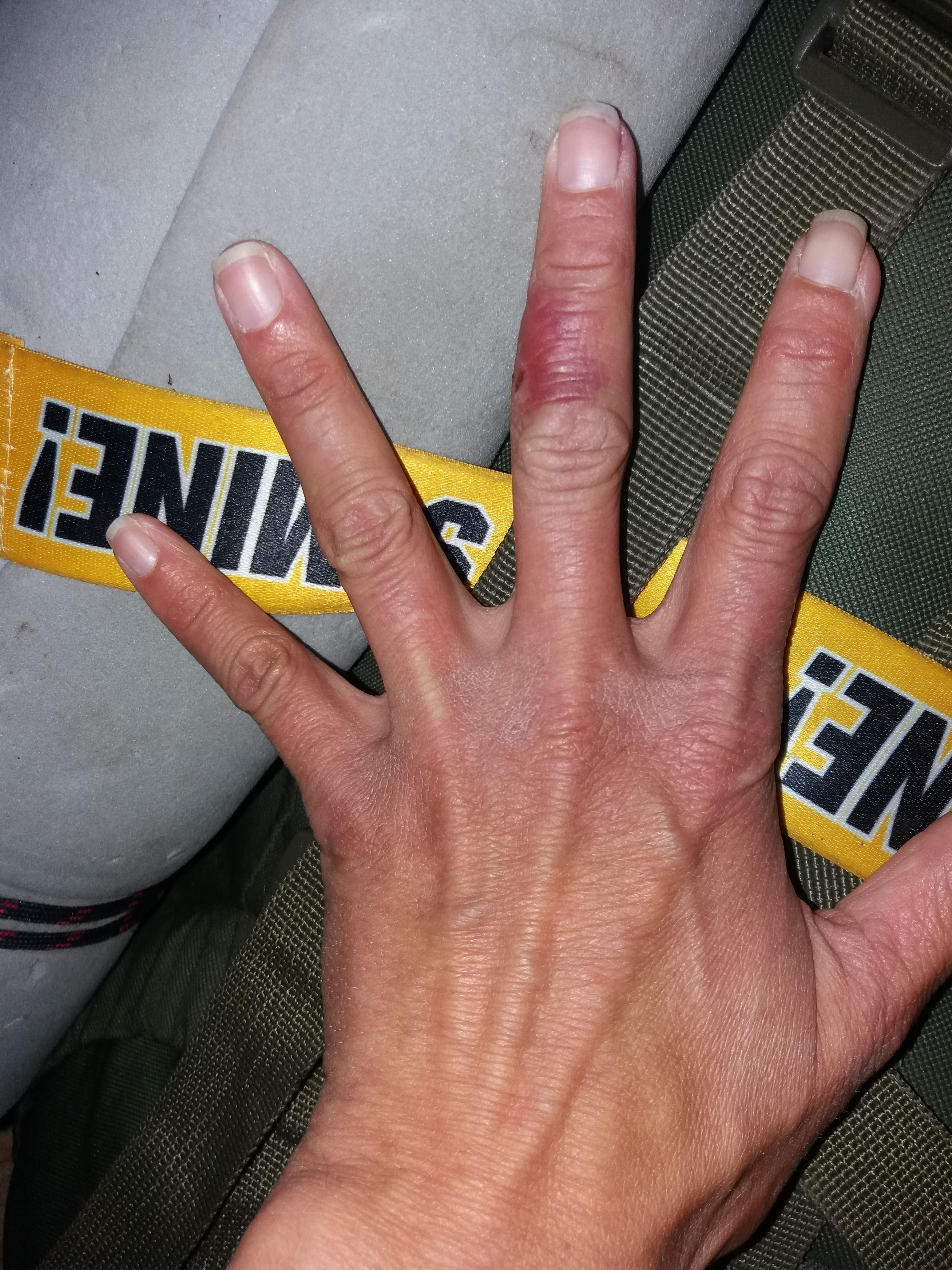 Cellulitis in hand slowly healing